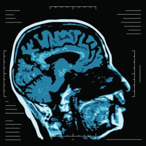MRI - Magnetic resonance